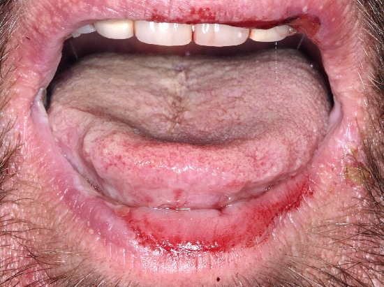 localisation: lower lip upper lip diagnosis: Pemphigus Mucosae