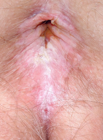 localisation: peri-anal  region diagnosis: Lichen Planus of the Mucosa, Erosive