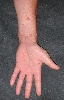 localisation: hands, lower arms, diagnosis: Verruca Vulgaris