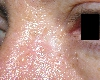 localisation: root of the nose, diagnosis: Basal Cell Carcinoma, Morpheiform