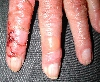 localisation: finger, diagnosis: Pseudoporphyria uraemica