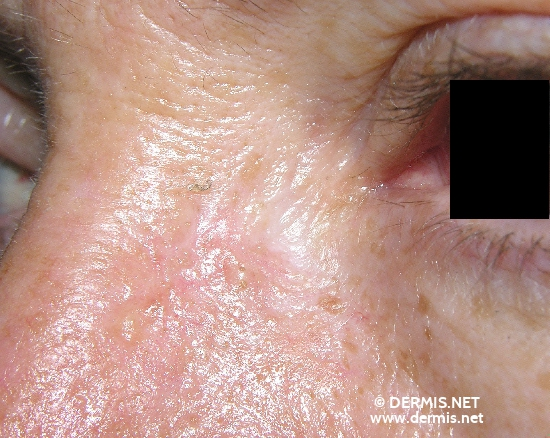 localisation: root of the nose diagnosis: Basal Cell Carcinoma, Morpheiform