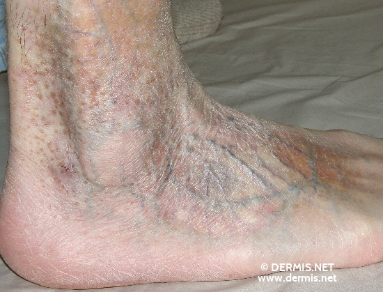 localisation: feet diagnosis: Mycosis Fungoides
