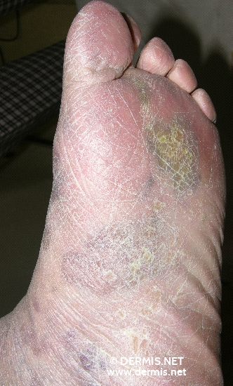 localisation: feet diagnosis: Kaposi's Sarcoma