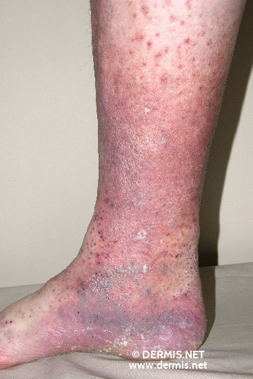 localisation: Unterschenkel Diagnose: Vasculitis allergica