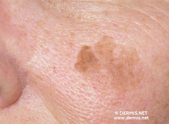 localisation: cheek diagnosis: Seborrheic Keratosis