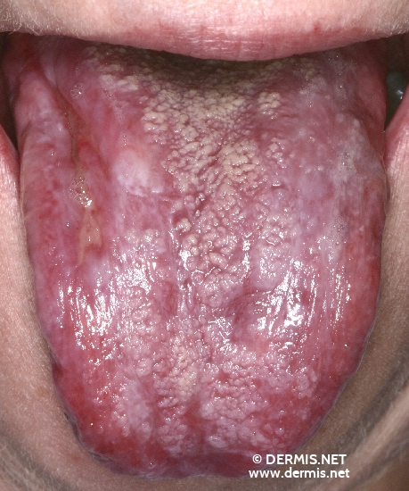 localisation: tongue diagnosis: Lichen Planus of the Mucosa