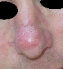 localisation: tip of the nose, diagnosis: Lymphoma, B-Cell