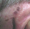 localisation: retro-auricular , diagnosis: Pigmented Basal Cell Carcinoma