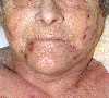 localisation: face, diagnosis: Factitial Dermatitis