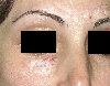 localisation: lower eyelid, diagnosis: Radiodermatitis, Chronic