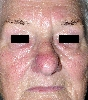 localisation: face, diagnosis: Rosacea, Rhinophyma
