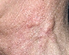 localisation: neck, diagnosis: Dermatofibrosarcoma Protuberans