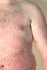 localisation: abdomen, diagnosis: Psoriasis Vulgaris, Chronic Stationary Type