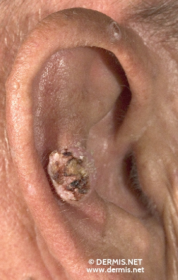 localisation: ear diagnosis: Squamous Cell Carcinoma