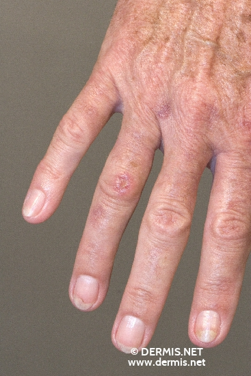 localisation: finger diagnosis: Porphyria Cutanea Tarda