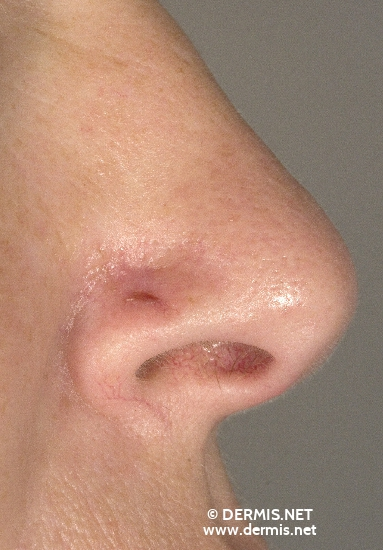 localisation: nose diagnosis: Basal Cell Carcinoma, Morpheiform