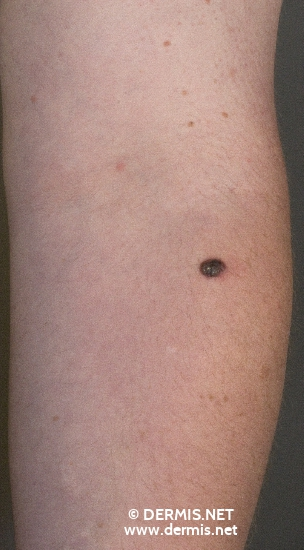 localisation: lower arms diagnosis: Nodular Melanoma (NM)