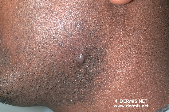 localisation: submandibular region diagnosis: Keloids in Scars