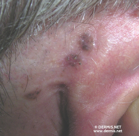 localisation: retro-auricular  diagnosis: Pigmented Basal Cell Carcinoma