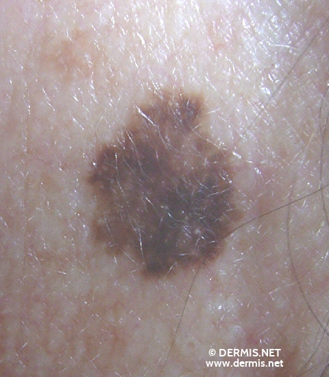 localisation: retro-auricular  diagnosis: Superficial Spreading Melanoma (SSM)