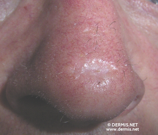 localisation: tip of the nose diagnosis: Basal Cell Carcinoma