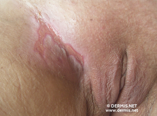 localisation: inguinal region diagnosis: Radiodermatitis, Chronic