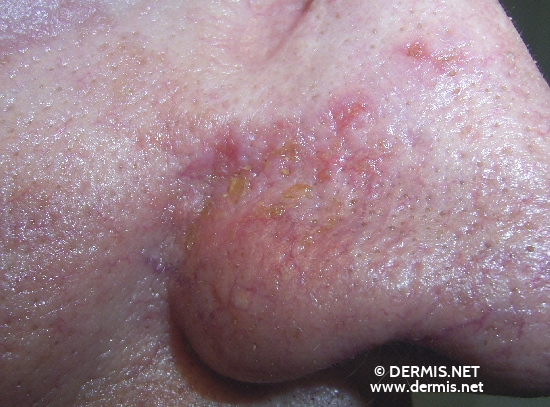 localisation: Nose angulus diagnosis: Squamous Cell Carcinoma Actinic Keratosis