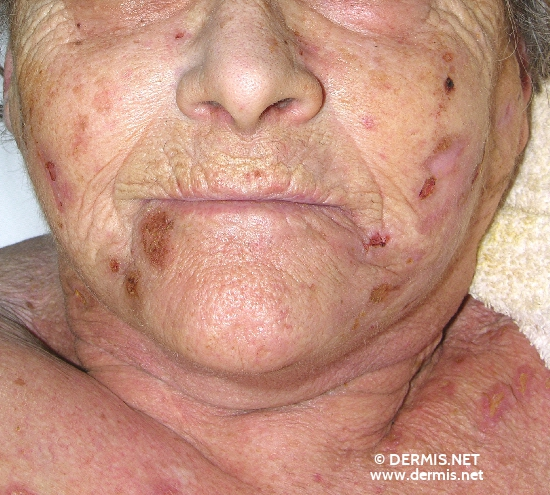 localisation: face diagnosis: Factitial Dermatitis