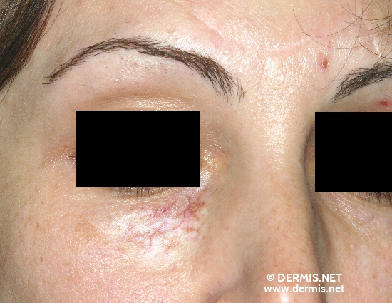 localisation: lower eyelid diagnosis: Radiodermatitis, Chronic