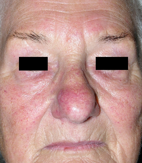localisation: face diagnosis: Rosacea Rhinophyma