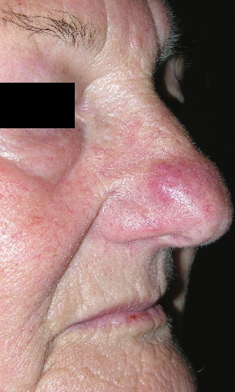localisation: nose diagnosis: Rhinophyma Rosacea