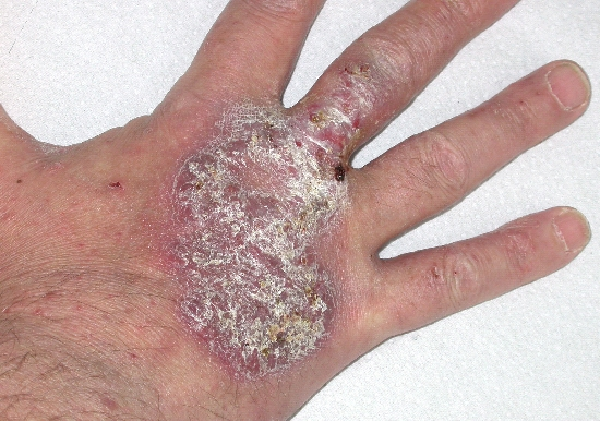 localisation: back of the hands finger diagnosis: Pyoderma Vegetans