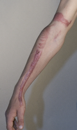 localisation: arms diagnosis: Hypertrophic Scar