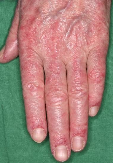 localisation: finger diagnosis: Dermatomyositis