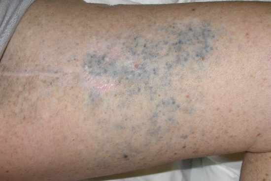 localisation: upper leg diagnosis: Malignant Melanoma, Metastatic