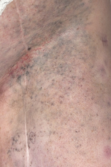 localisation: inguinal region upper leg diagnosis: Malignant Melanoma, Metastatic