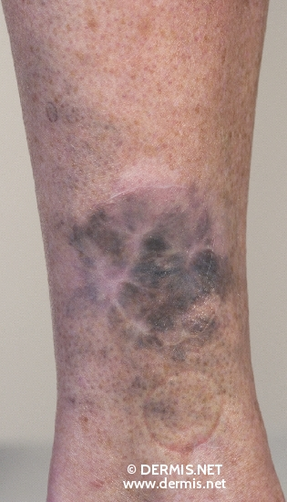 localisation: lower leg diagnosis: Malignant Melanoma, Metastatic