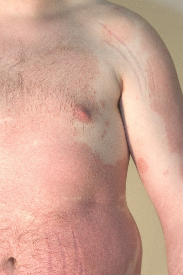 localisation: abdomen diagnosis: Psoriasis Vulgaris, Chronic Stationary Type