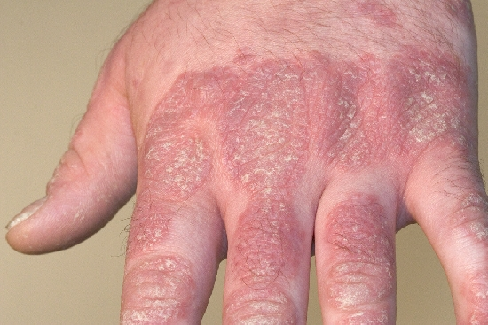 localisation: back of the hands finger diagnosis: Psoriasis Vulgaris, Chronic Stationary Type