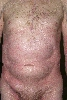 localisation: trunk, diagnosis: Parakeratosis Variegata