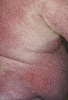 Lokalisation: Flanke, Diagnose: Dermatomyositis