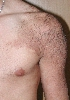 localisation: shoulder region, diagnosis: Becker's Nevus