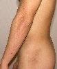 localisation: flank, arms, diagnosis: Dermatitis Herpetiformis Duhring