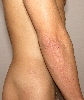 localisation: flank, lower arms, elbow, diagnosis: Dermatitis Herpetiformis Duhring