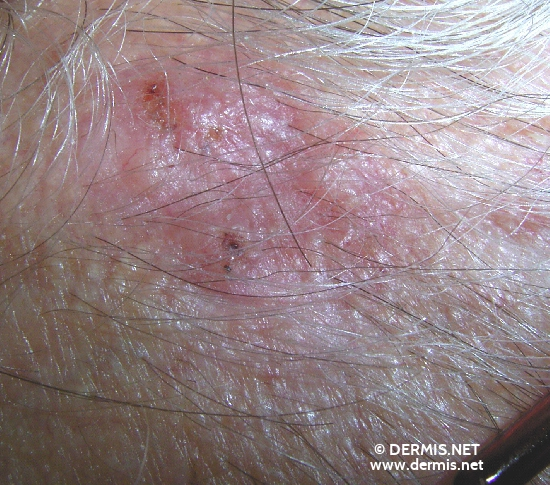 localisation: head diagnosis: Basal Cell Carcinoma, Morpheiform