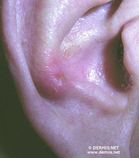 localisation: auricle diagnosis: Basal Cell Carcinoma, Morpheiform
