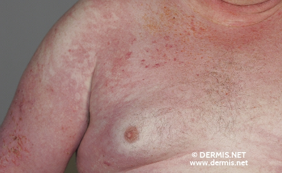 localisation: chest diagnosis: Dermatomyositis