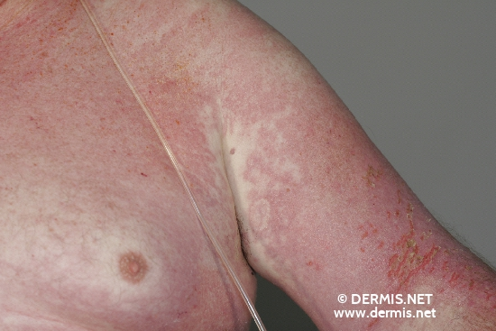 localisation: upper arms chest diagnosis: Dermatomyositis