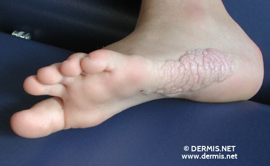 localisation: feet sole diagnosis: Proteus Syndrome Connective Tissue Nevus